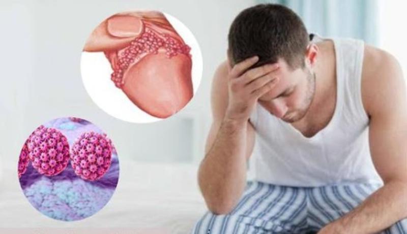 Bệnh sùi mào gà xuất hiện phổ biến do quan hệ tình dục không an toàn