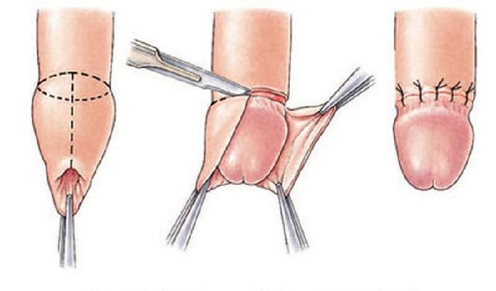 Hình 1: Quy trình cắt bao quy đầu