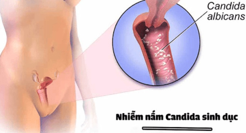 Viêm nhiễm âm đạo do nấm men candida thường phát triển ở trong âm hộ của phụ nữ.