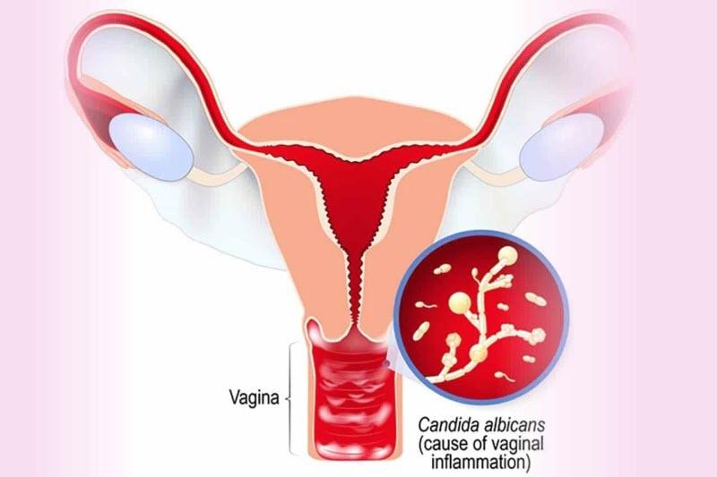 Hầu hết chị em đều chủ quan khi có những dấu hiệu viêm âm đạo