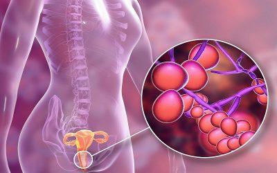 Hình ảnh viêm âm đạo thường gặp mà bạn nên biết