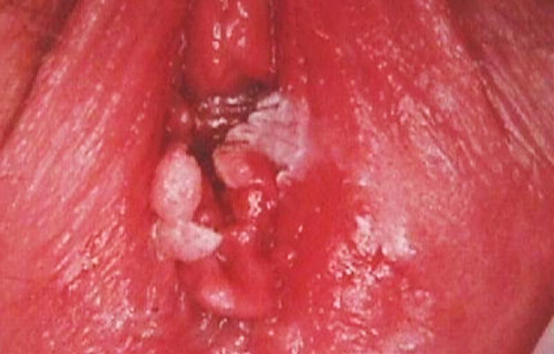 Viêm âm đạo bị sưng đỏ do viêm nhiễm