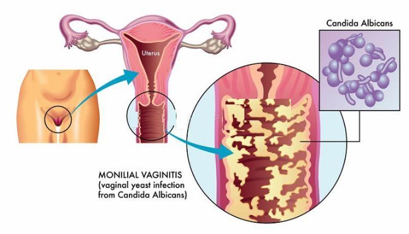 Nguyên nhân viêm âm đạo do nhiễm vi khuẩn