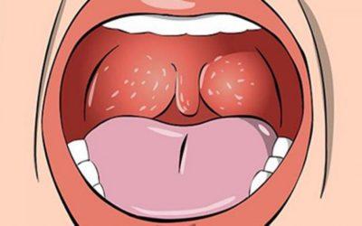 Các triệu chứng bệnh lậu ở cổ họng cần lưu ý