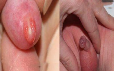 Bao quy đầu bị dính và cách chữa trị hiệu quả nhất