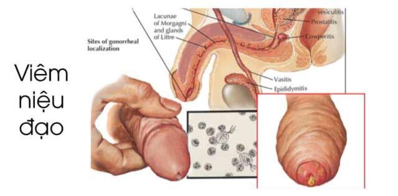 Dính bao quy đầu gây nên các bệnh như viêm niệu đạo hay viêm tinh hoàn