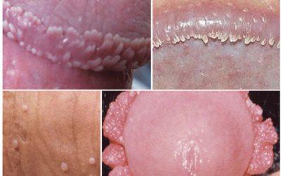 Bệnh sùi mào gà ở nam giới giai đoạn đầucó triệu chứng như thế nào?