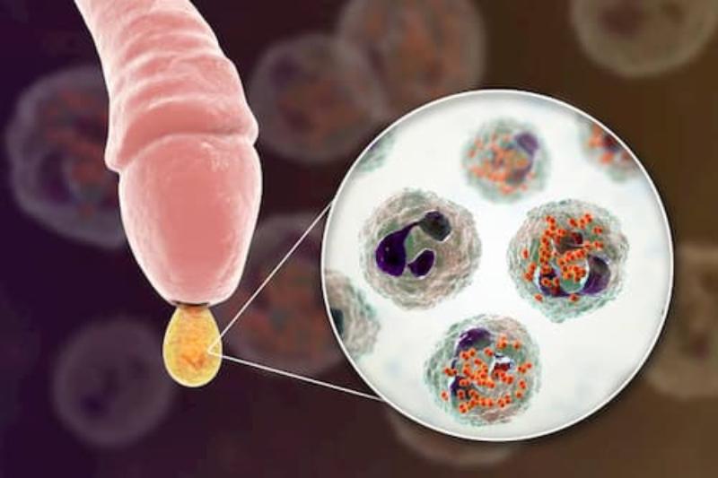 Bao quy đầu dài gây lên các tình trạng viêm nhiễm ở nam giới