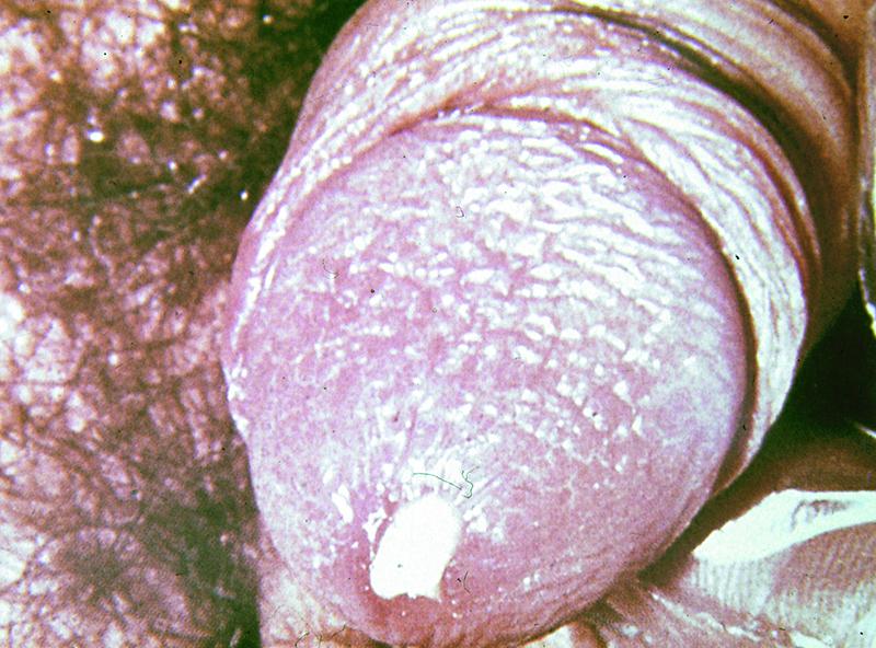 Viêm niệu đạo do vi khuẩn lậu gây ra