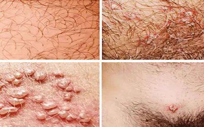 Bệnh mụn rộp sinh dục lây qua đường nào – Phương pháp điều trị ra sao?