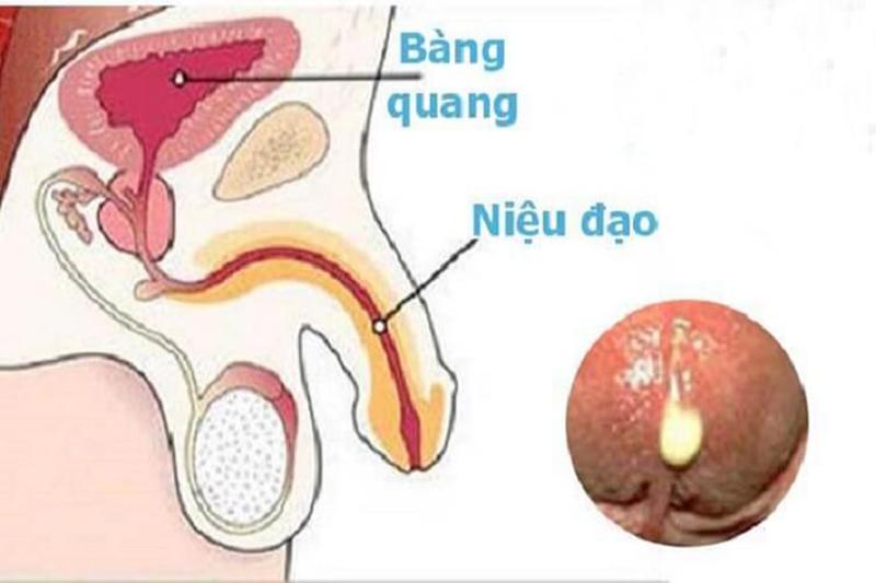 Nam giới bị viêm niệu đạo có thể xuất hiện mủ ở đầu dương vật