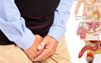 Tìm hiểu viêm tinh hoàn nguyên nhân và cách điều trị triệt để