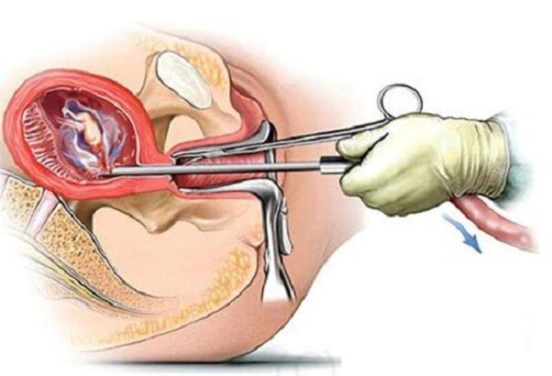 Đốt viêm lộ tuyến cổ tử cung ở đâu tốt nhất hiện nay?