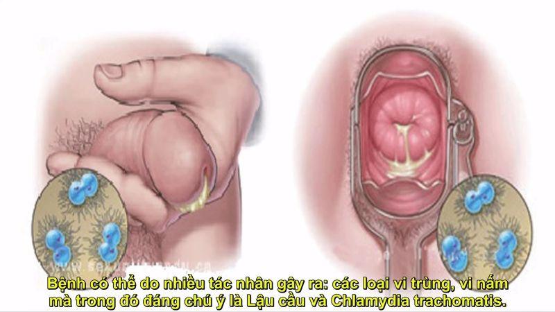 Nhịn tiểu cũng là thói quen xấu làm cho niệu đạo dễ nhiễm khuẩn