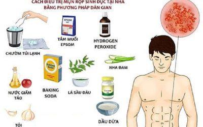 10 cách chữa mụn rộp sinh dục nam tại nhà hiệu quả