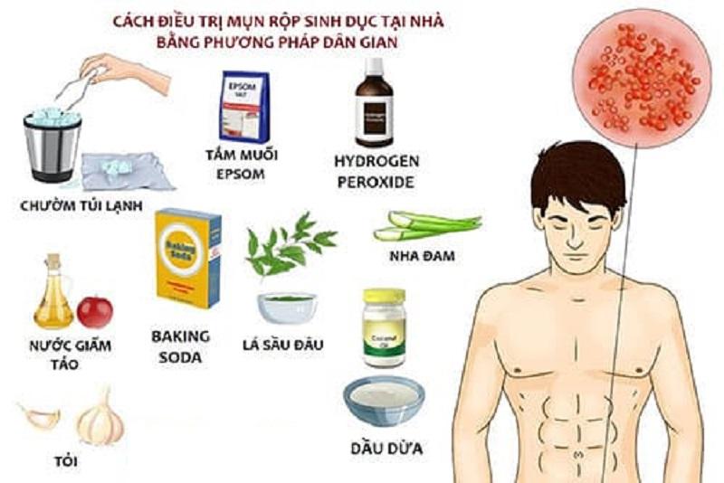 cách chữa mụn rộp sinh dục nam tại nhà