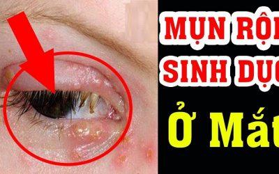 Mụn rộp sinh dục ở mắt: Triệu chứng và cách phòng tránh