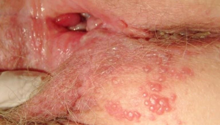 Nguyên nhân bị mụn rộp sinh dục dễ làm ngứa vùng kín