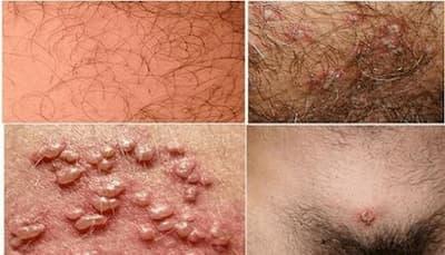 Mụn rộp sinh dục thường mọc ở đâu? Các vị trí và triệu chứng dễ xuất hiện