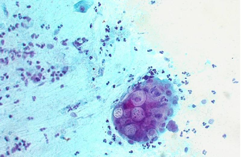 viêm niệu đạo chlamydia