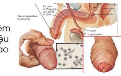 [Kiến thức] Bệnh viêm niệu đạo nam là gì?