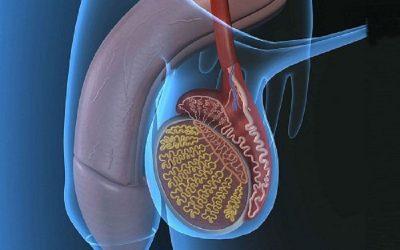 Vì sao viêm tinh hoàn tái phát? Cách điều trị dứt điểm