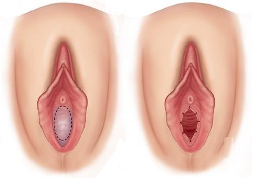 Tìm hiểu rõ hơn về thủ thuật vá màng trinh