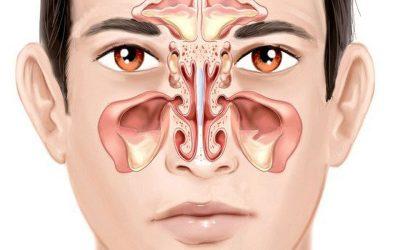 [ Giải đáp] – Viêm xoang mũi không nên ăn gì?