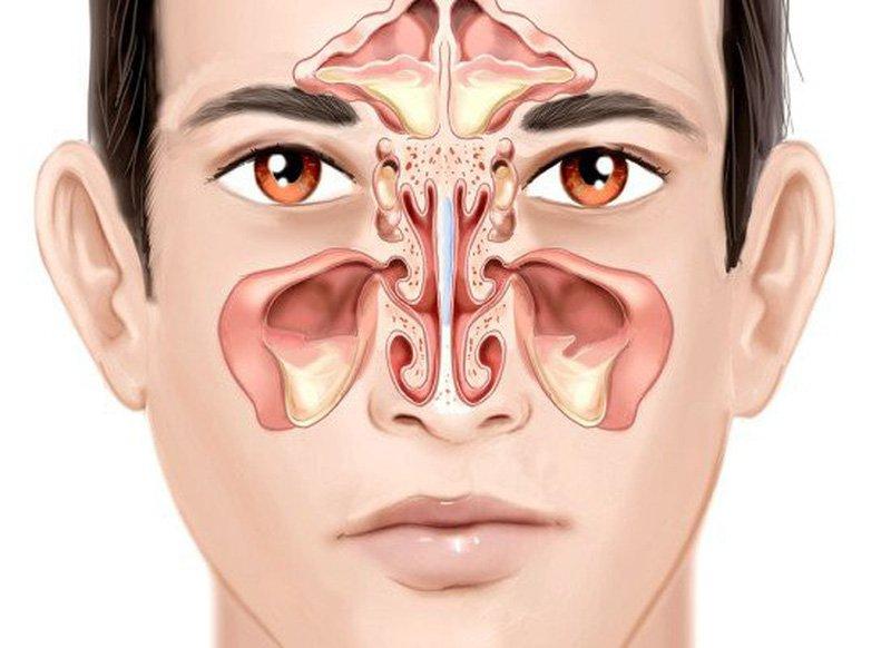 Viêm xoang mũi không nên ăn gì?