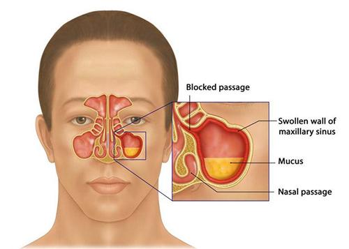 Viêm xoang mũi không nên ăn gì để tốt cho sức khỏe?