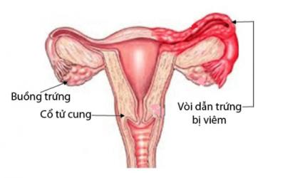 Hình ảnh ống dẫn trứng bình thường và bị viêm, tắc [Chi tiết rõ ràng]