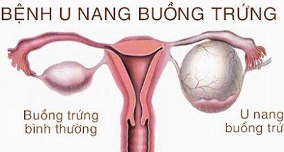 U nang buồng trứng gây rối loạn kinh nguyệt có nguy hiểm?